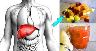 صورة علاج دهون الكبد جابر القحطاني , من اكثر الاوجاع