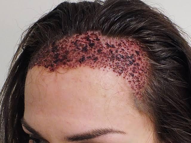 صورة زراعة الشعر بتركيا , يهم بعض من الشباب