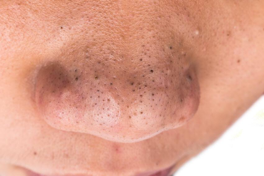 صورة كيفية ازالة الرؤوس السوداء من الوجه , جمالنا هو اهم شئ