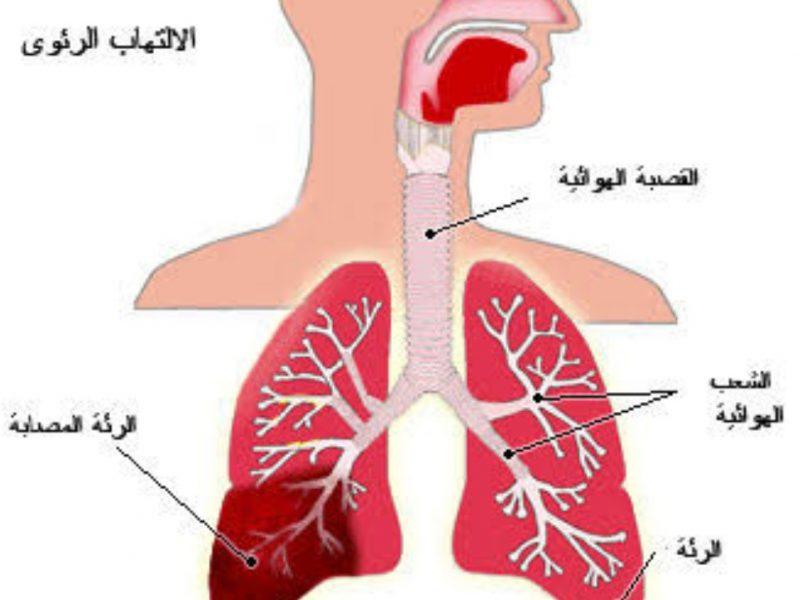 صورة علاج الحساسية الصدرية بالقرنفل , من ابشع الامراض