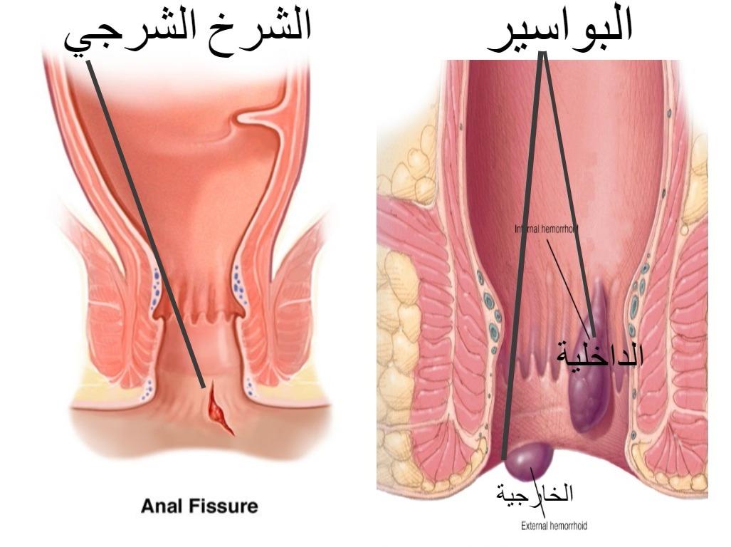 صورة علاج الباسور الخارجي , طرق مختلفة لعلاج البواسير بالمنزل