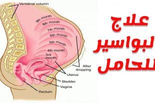 صورة علاج البواسير عند الحامل , التخلص من البواسير عند الحامل