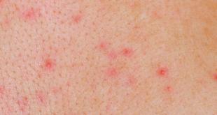 صورة حبوب حمراء في الجسم , اسباب وعلاج الحبوب فى الجسم