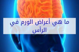 صورة اعراض اورام الراس , كيف تعرف اورام الراس من الاعراض الاوليه