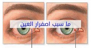 صورة سبب اصفرار العين , علامات تظهر فى العيون تعرف المرض منها