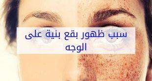 صورة بقع بنية على الوجه , اسباب وعلاج البقع البنيه فى الوجه