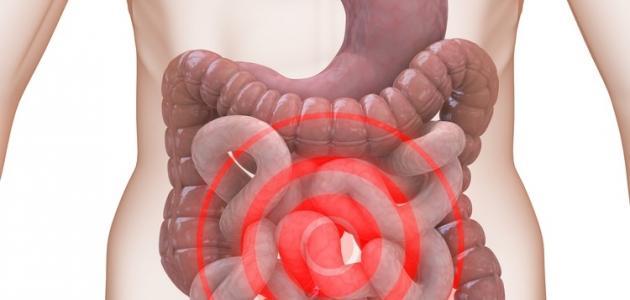صورة ماهي اسباب القولون العصبي،كيفيه علاج القولون العصبي