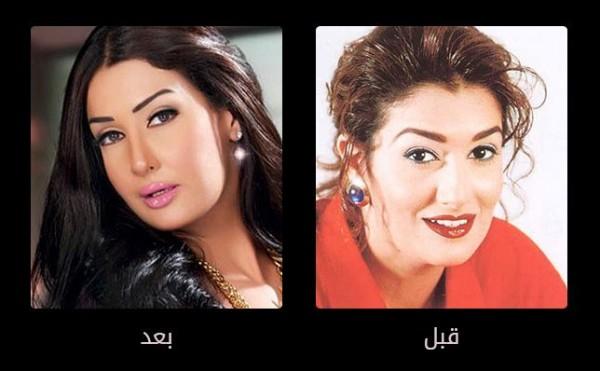 صورة الصور الفنانات قبل وبعد عمليات التجميل،تشوه الفنانات بسبب عمليات التجميل