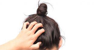 صورة حكة الراس بدون قشرة،اسباب و طرق الوقايه من حكه الشعر