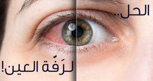 صورة اسباب رف العين , اجمل النصائح لعلاج رف العين